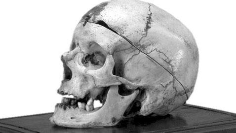 Il caso del cranio di Villella